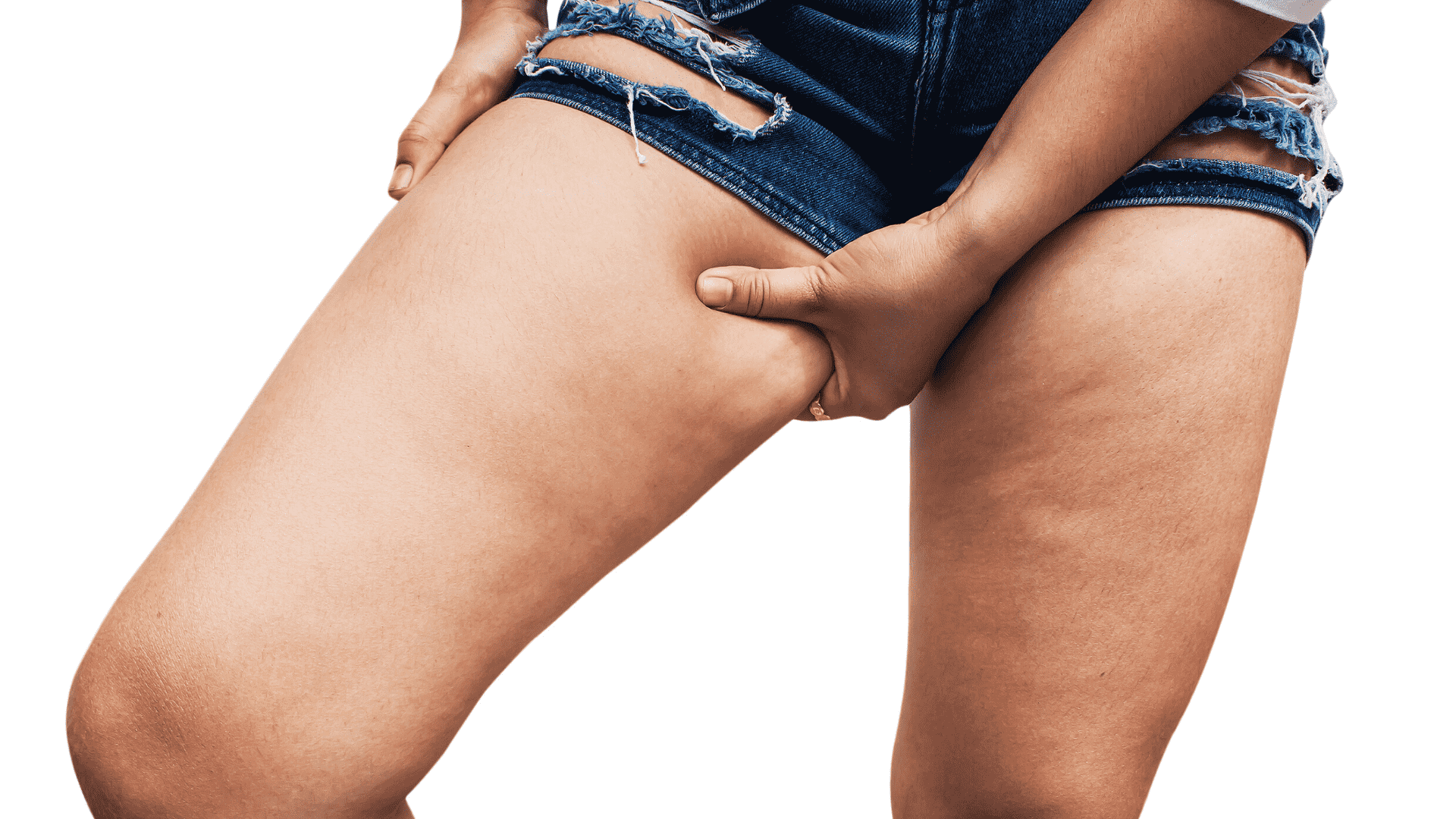 A Very Efficient 4 Steps Method To Remove The Unaesthetic Cellulite Birdys Health Dose